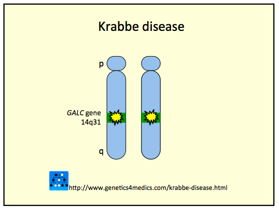the genetics of the krabbe disease an autosomal recessive disorder Krabbe disease is a lysosomal disorder that affects the central and peripheral   the condition is inherited in an autosomal recessive pattern and is caused by a   and identification of the biallelic pathogenic mutations in the galc gene.