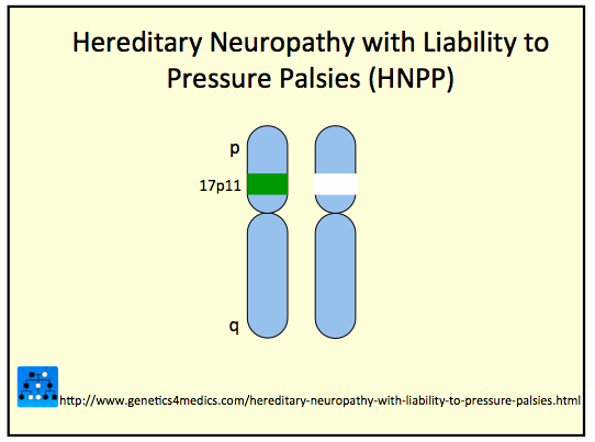 Hereditary neuropathy with liability to pressure palsies Hereditary motor neuropathy
